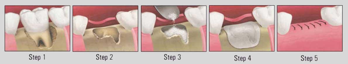 Костная лунка зуба что это