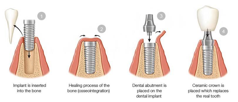 Dental Implant Treatment Phases