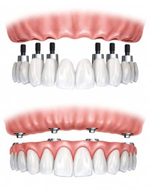 Image result for full mouth dental implants
