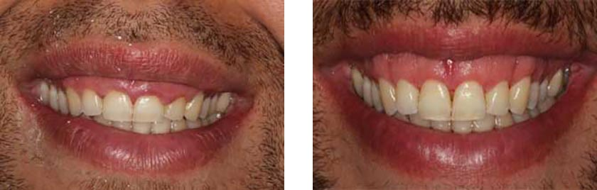 Gummy Smile Correction NYC Before After