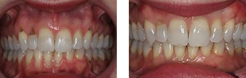 Soft-Tissue-Graft-nyc-before-after-1