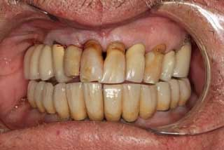 after full mouth implants