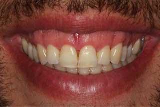 after gummy smile correction