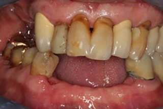 before full mouth implants