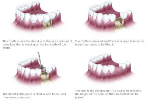bone grafting after tooth extraction