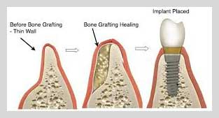 Bone Grafting Techniques Nyc Dental Implants Manhattan Ny