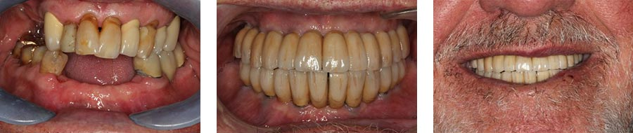 dental implants nyc before after 1