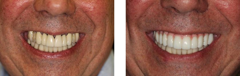 dental implants nyc before after 10