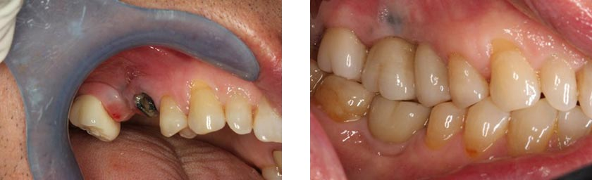 dental implants nyc before after 11