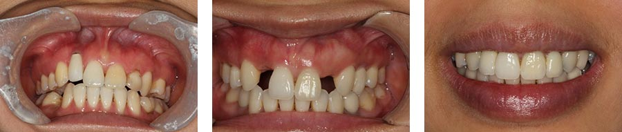dental implants nyc before after 13