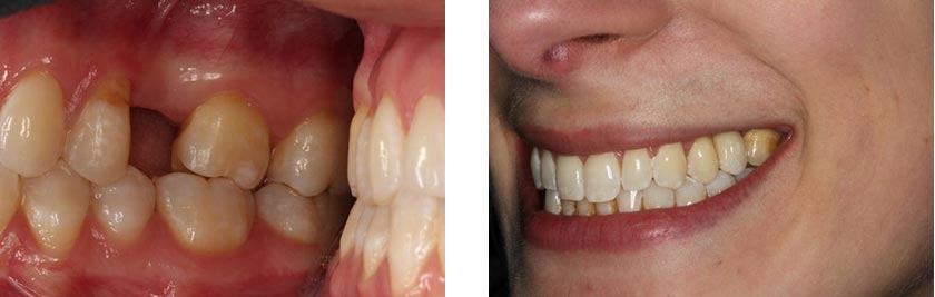 dental implants nyc before after 2