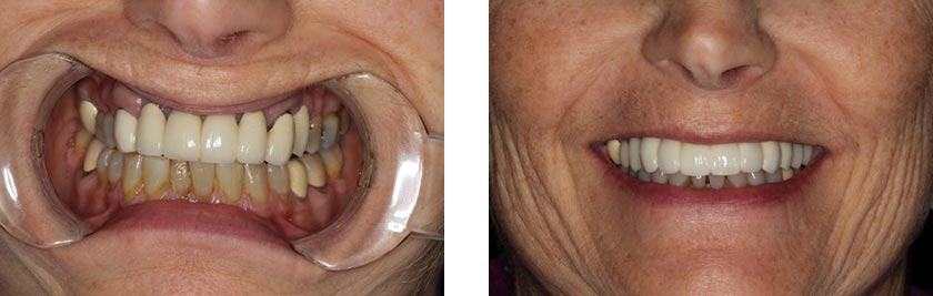 dental implants nyc before after 4
