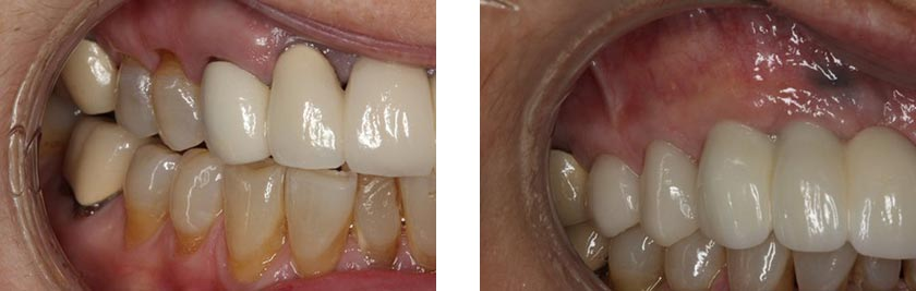 dental implants nyc before after 5