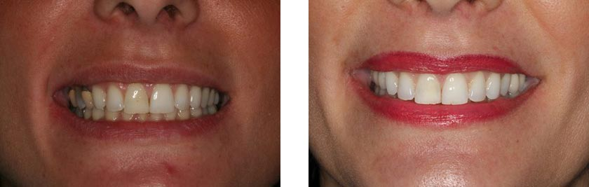 dental implants nyc before after 8