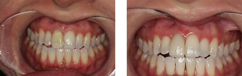 dental implants nyc before after 9