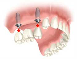 multiple teeth implants dentist specialist nyc