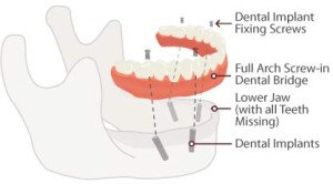 teeth-in-a-day procedure replace missing teeth in 1 day