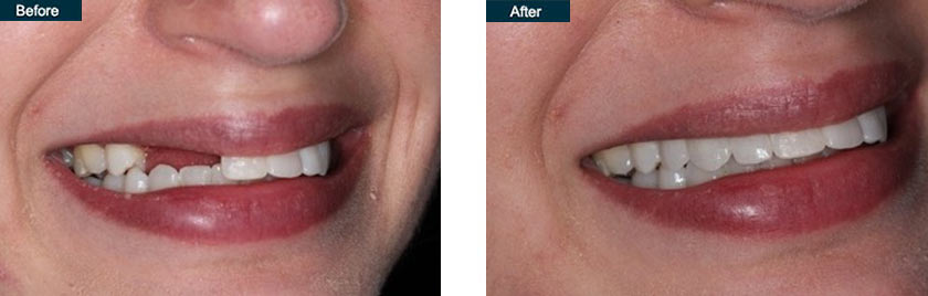 3 unit dental implant bridge nyc before after