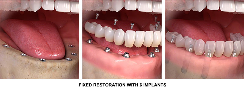 Full Mouth all on 6 dental Implants procedure | Implant Dentist Midtown NYC