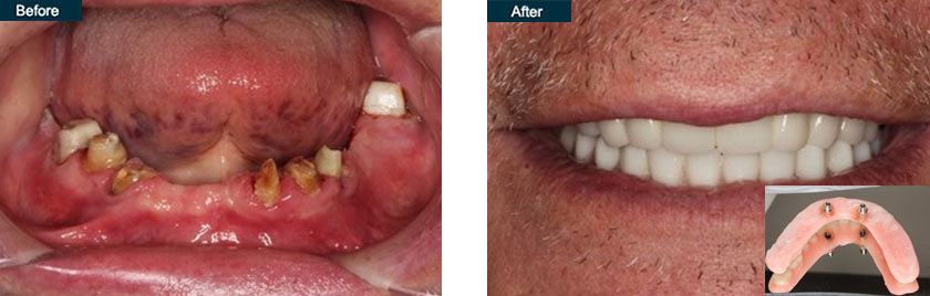 all on 4 dental implants nyc before after
