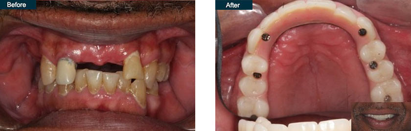 all on 6 dental implants nyc before after