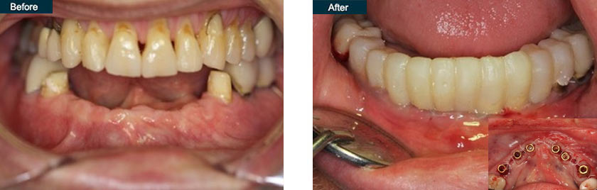 dental implant placement with temporary teeth fixed same day nyc before after