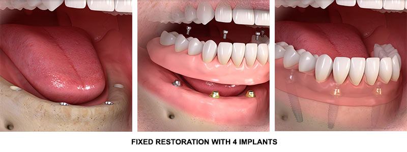 dental implants all on 4 four process | midtown nyc