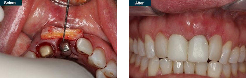 front tooth dental implants dentist nyc before after