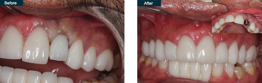 front tooth implant before after