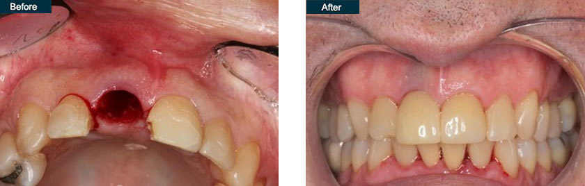 front tooth implant dentist nyc before after