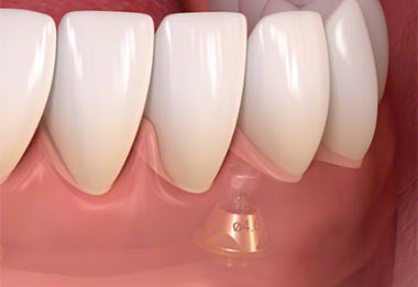 front tooth implant dentist | Dental Implants NYC