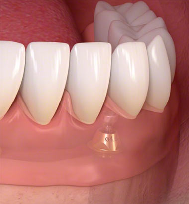Front Tooth Implant Top Rated Nyc Dentist Midtown Upper East Side