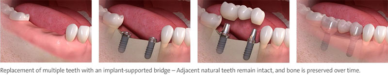 replace multiple teeth implants with implant supported bridge nyc