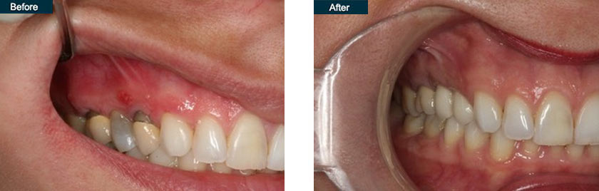 single tooth implant upper right dentist nyc before after