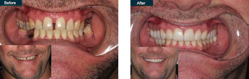 smile makeover implants bridge nyc before after
