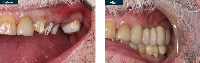 upper 3 unit tooth implant bridge nyc before after