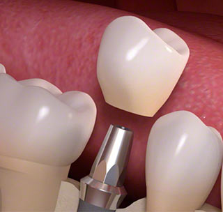 Single tooth implants dentist | dental specialist nyc