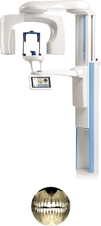 Cone-beam Computed Tomography CBCT